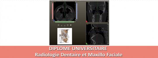 pub Radiologie dentaire